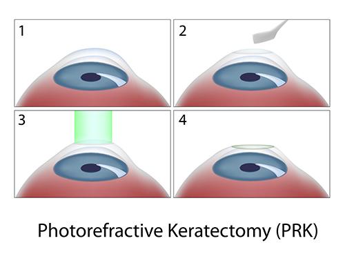 transPRK laser eye surgery